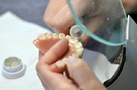 Zahnzusatzversicherungen sind die am meisten abgeschlossenen Versicherungen derzeit.